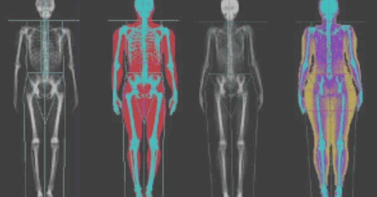 DEXA Body Fat Percentage